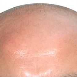 Митове и истини за косопада при мъжете